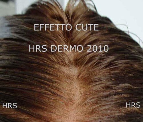 impianto capelli